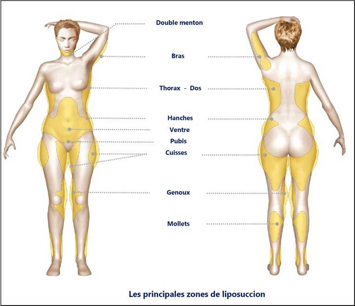 Les zones du corps concernées par la liposuccion