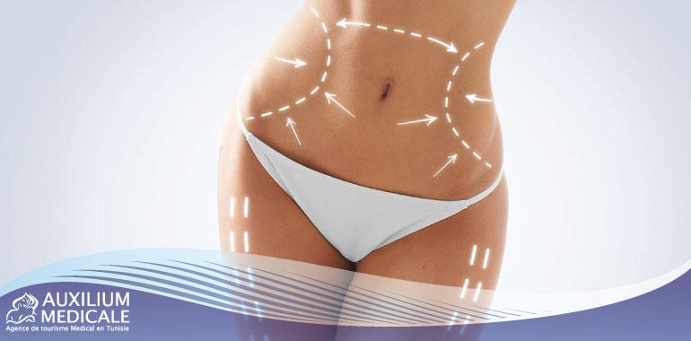Combien de kilos peut-on perdre avec une liposuccion