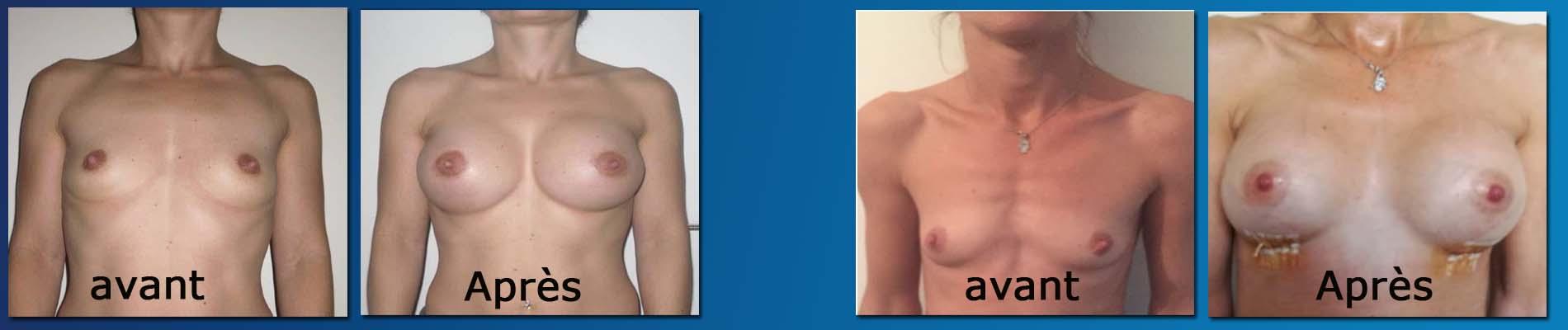 avant apres augmentation mammaire