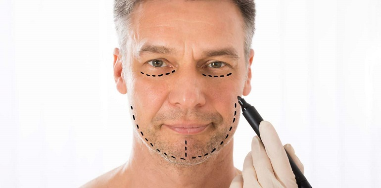 Quelles sont les opérations de chirurgie esthétique les plus réalisées chez les hommes