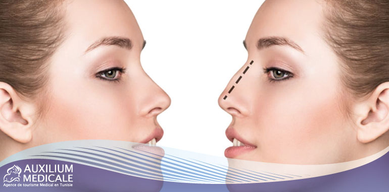 Réduire les narines trop larges grâce à la chirurgie esthétique