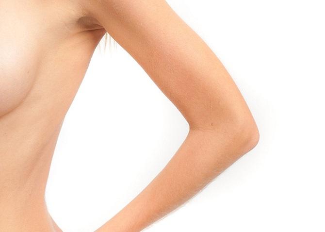 Lifting des bras : quelles sont les suites de l'opération