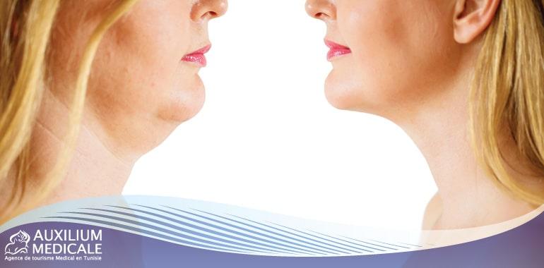 Comment enlever le double menton grâce à la chirurgie esthétique