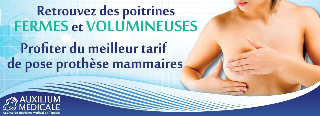 Augmentation-mammaire-par-prothèses-tunisie.