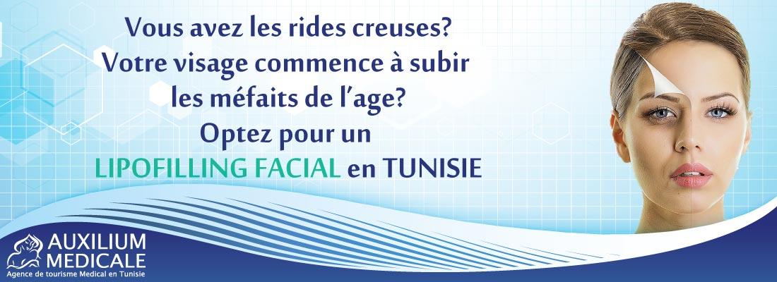 lipofilling-du-visage-tunisie
