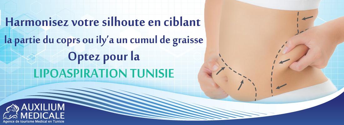 liposuccion-tunisie