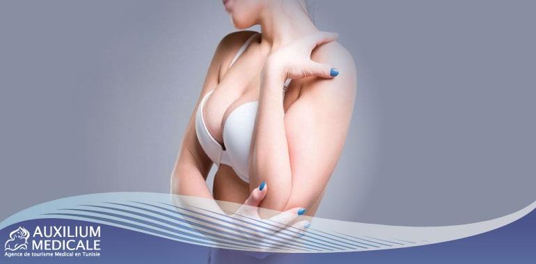 Augmentation des seins : quels emplacements possibles pour les prothèses